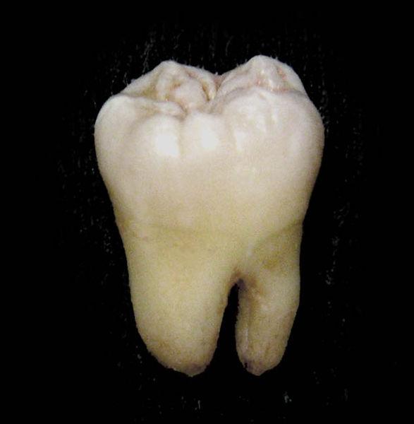 587px-Lower_wisdom_tooth